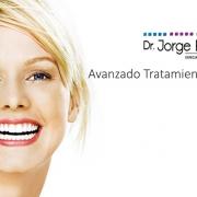 Dr. Jorge Echeverri, ortodoncia sin braquets